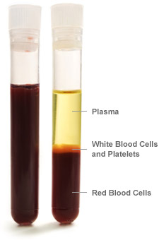 Blood _parts _vial